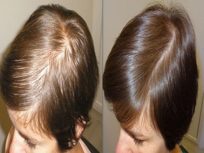 De Haarspecialist